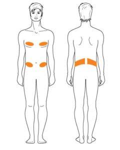 Fettwegspritze - Behandlungen Mann
