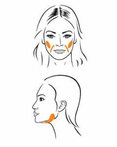 Fettwegspritze - Behandlungen Gesicht