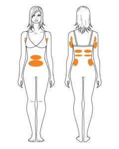 Fettwegspritze - Behandlungen Frau